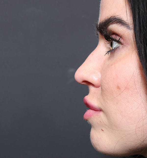 Non-Surgical Rhinoplasty Gallery - Patient 14089560 - Image 9
