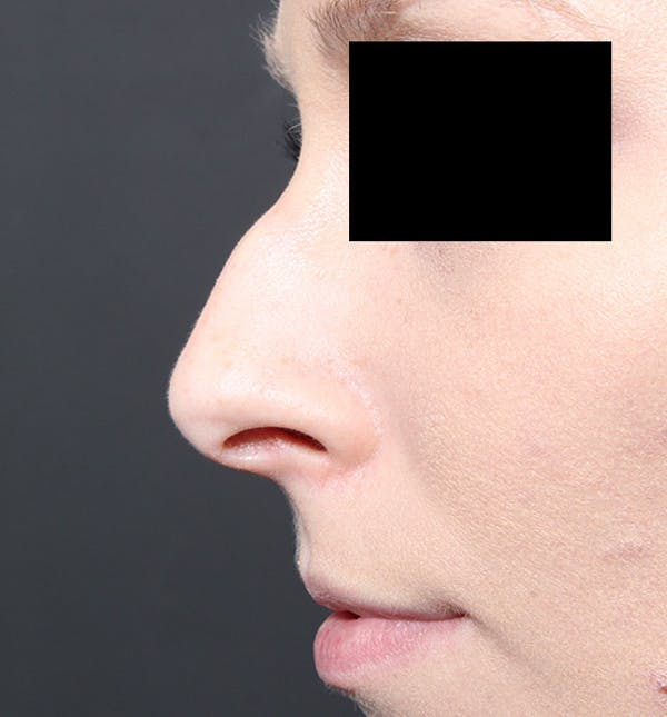 Rhinoplasty Gallery - Patient 14089562 - Image 5