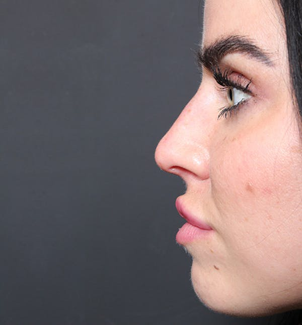 Non-Surgical Rhinoplasty Gallery - Patient 14089560 - Image 10
