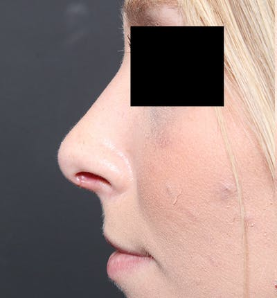 Rhinoplasty Gallery - Patient 14089562 - Image 6
