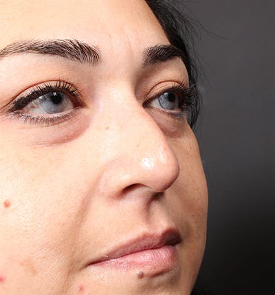 Non-Surgical Rhinoplasty Gallery - Patient 14089567 - Image 1