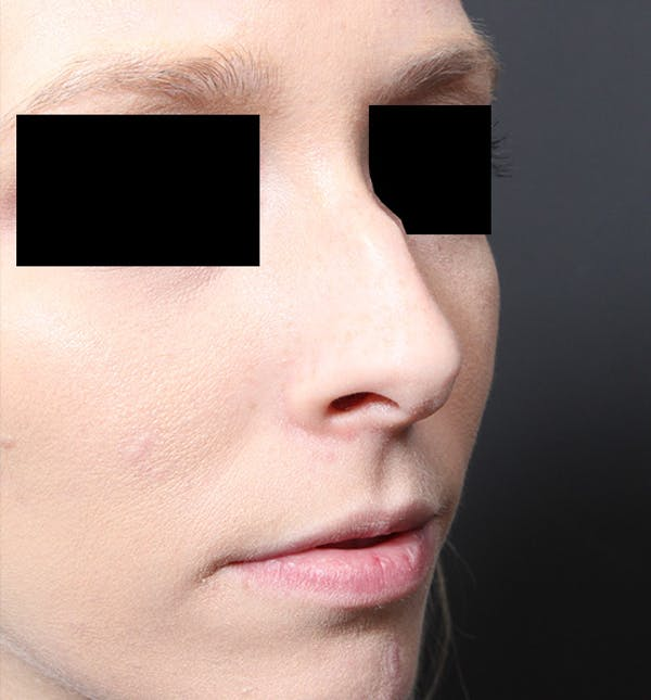 Rhinoplasty Gallery - Patient 14089562 - Image 7