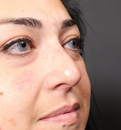 Non-Surgical Rhinoplasty Gallery - Patient 14089567 - Image 2