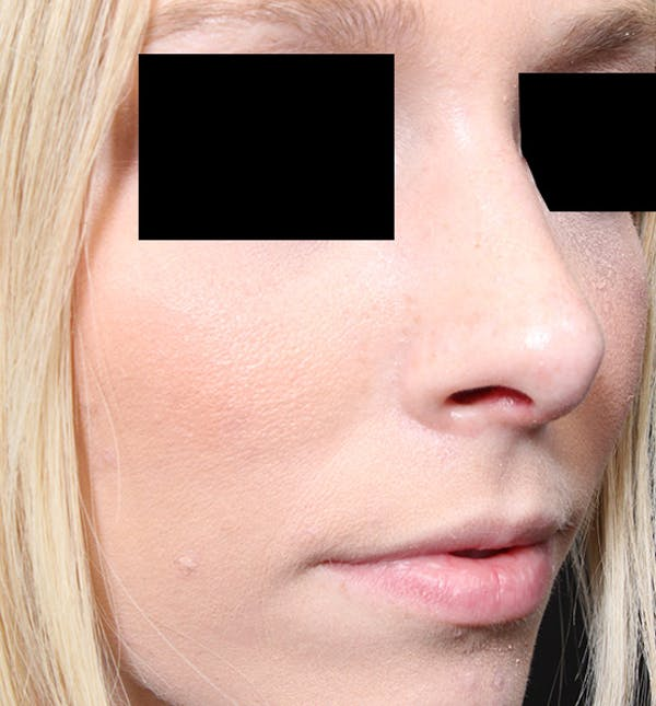 Rhinoplasty Gallery - Patient 14089562 - Image 8