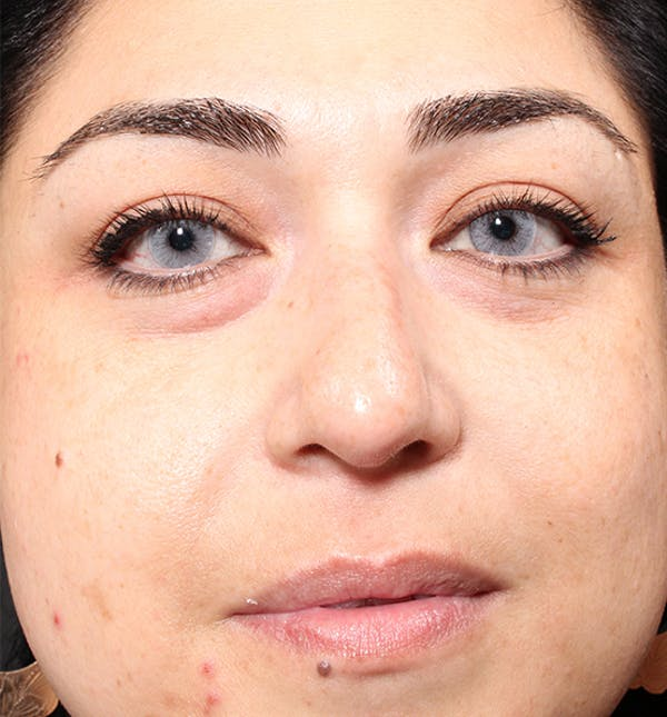 Non-Surgical Rhinoplasty Gallery - Patient 14089567 - Image 3