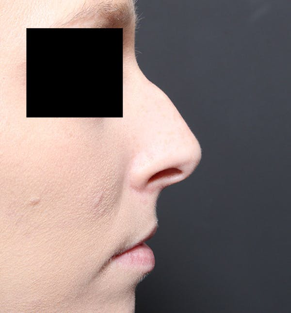 Rhinoplasty Gallery - Patient 14089562 - Image 9