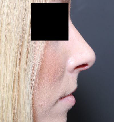 Rhinoplasty Gallery - Patient 14089562 - Image 10