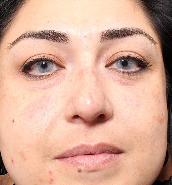 Non-Surgical Rhinoplasty Gallery - Patient 14089567 - Image 4