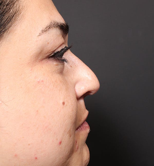 Non-Surgical Rhinoplasty Gallery - Patient 14089567 - Image 5