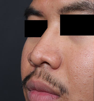 Rhinoplasty Gallery - Patient 14089570 - Image 1