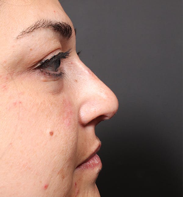 Non-Surgical Rhinoplasty Gallery - Patient 14089567 - Image 6