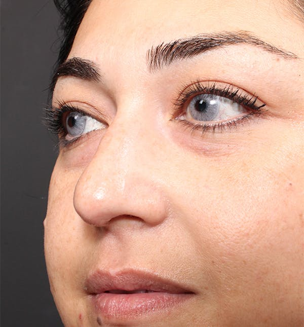 Non-Surgical Rhinoplasty Gallery - Patient 14089567 - Image 7