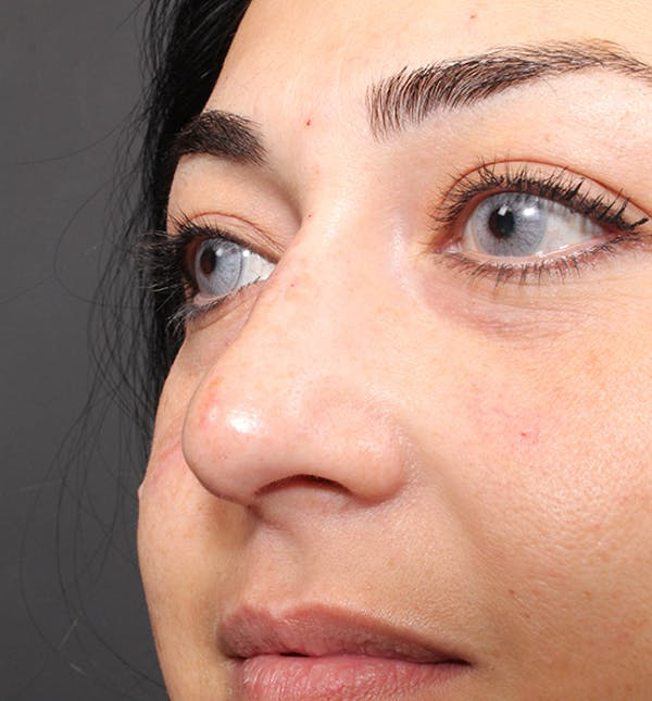 Non-Surgical Rhinoplasty Gallery - Patient 14089567 - Image 8