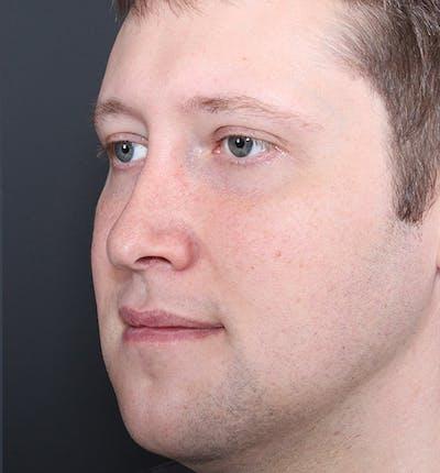 Genioplasty Gallery - Patient 14089568 - Image 2