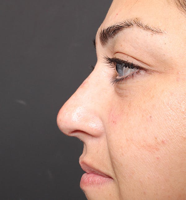 Non-Surgical Rhinoplasty Gallery - Patient 14089567 - Image 10