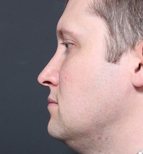 Genioplasty Gallery - Patient 14089568 - Image 5