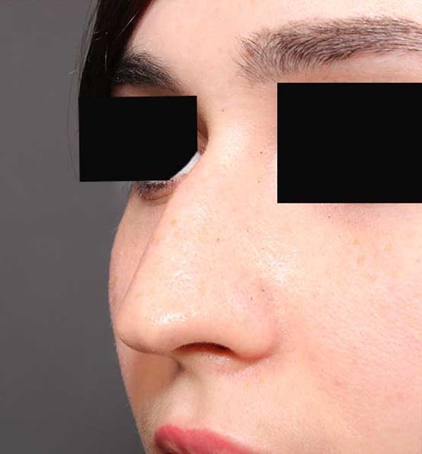 Non-Surgical Rhinoplasty Gallery - Patient 14089574 - Image 1