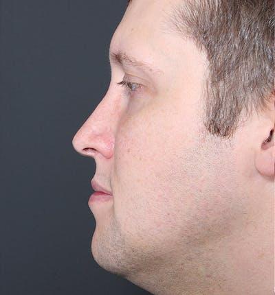 Genioplasty Gallery - Patient 14089568 - Image 6