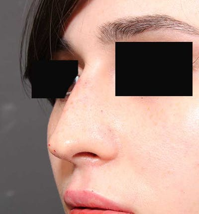 Non-Surgical Rhinoplasty Gallery - Patient 14089574 - Image 2