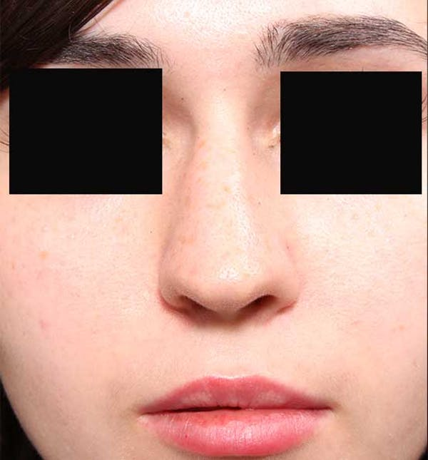 Non-Surgical Rhinoplasty Gallery - Patient 14089574 - Image 3