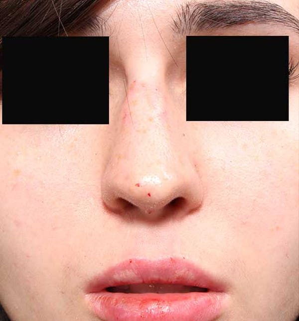 Non-Surgical Rhinoplasty Gallery - Patient 14089574 - Image 4