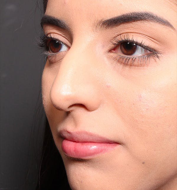 Rhinoplasty Gallery - Patient 14089575 - Image 1