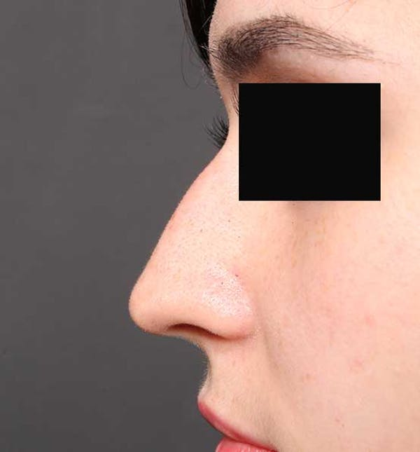 Non-Surgical Rhinoplasty Gallery - Patient 14089574 - Image 5