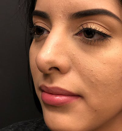Rhinoplasty Gallery - Patient 14089575 - Image 2