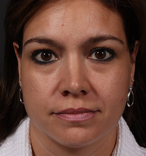 Fat Transfer Gallery - Patient 14089573 - Image 3
