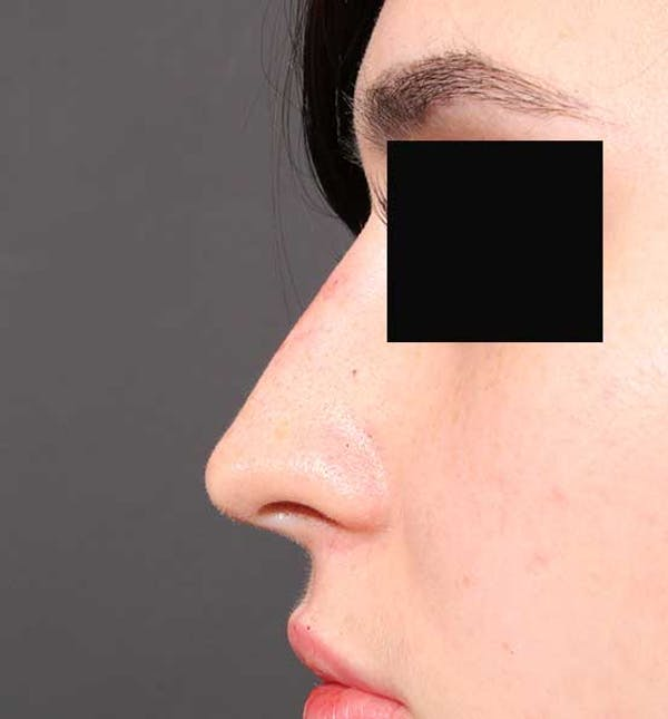 Non-Surgical Rhinoplasty Gallery - Patient 14089574 - Image 6