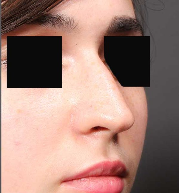 Non-Surgical Rhinoplasty Gallery - Patient 14089574 - Image 7