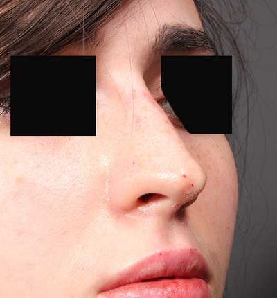 Non-Surgical Rhinoplasty Gallery - Patient 14089574 - Image 8