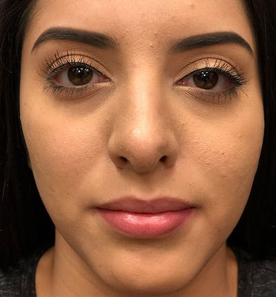 Rhinoplasty Gallery - Patient 14089575 - Image 4