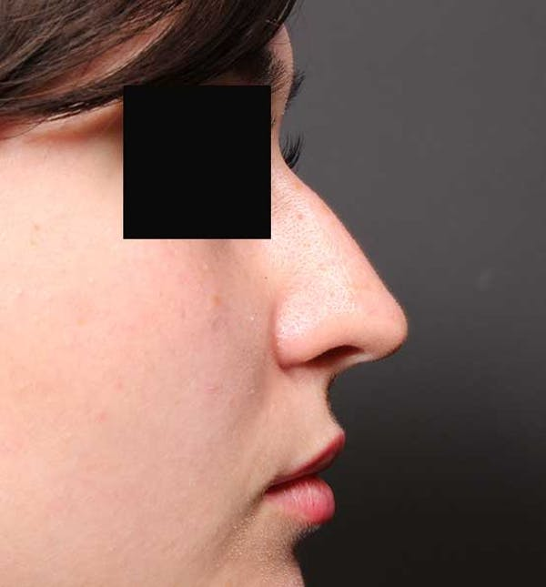 Non-Surgical Rhinoplasty Gallery - Patient 14089574 - Image 9