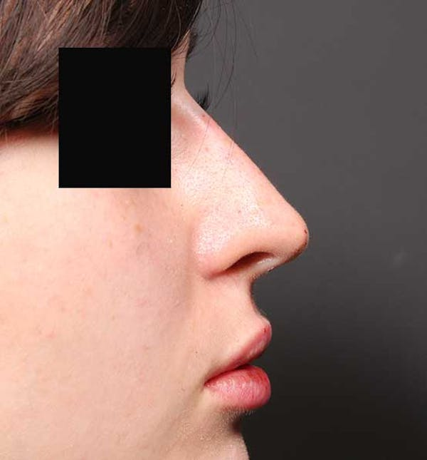 Non-Surgical Rhinoplasty Gallery - Patient 14089574 - Image 10