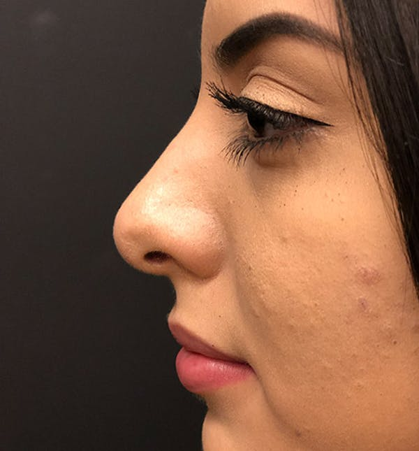 Rhinoplasty Gallery - Patient 14089575 - Image 6