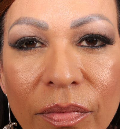 Eyelid Lift Gallery - Patient 14089576 - Image 1