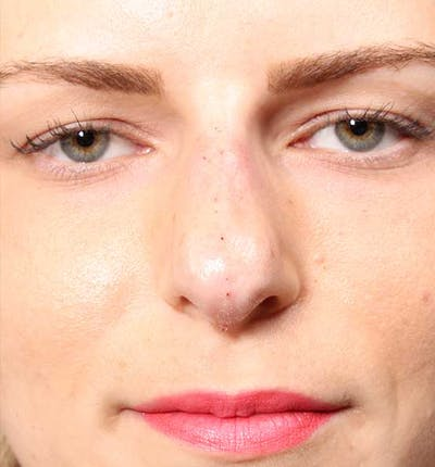 Non-Surgical Rhinoplasty Gallery - Patient 14089581 - Image 2