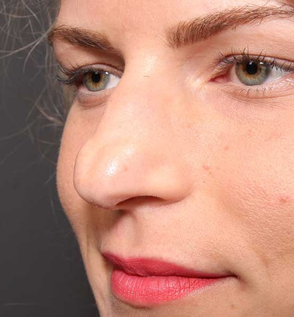 Non-Surgical Rhinoplasty Gallery - Patient 14089581 - Image 3