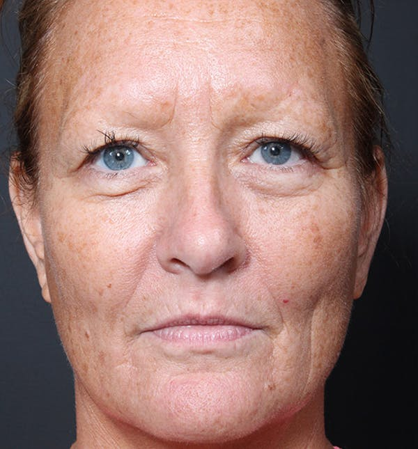 Fat Transfer Gallery - Patient 14089579 - Image 3