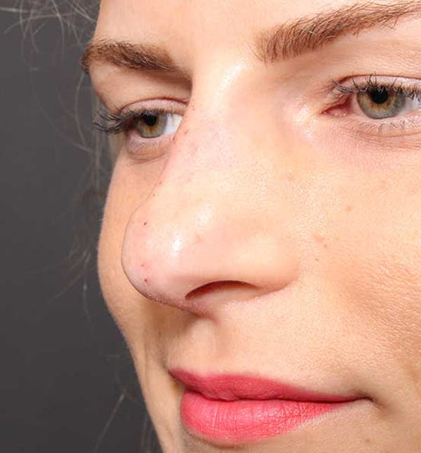 Non-Surgical Rhinoplasty Gallery - Patient 14089581 - Image 4