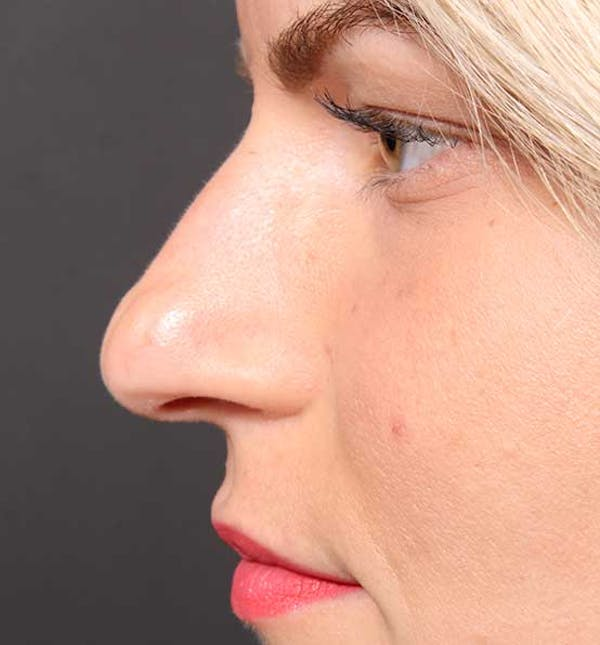 Non-Surgical Rhinoplasty Gallery - Patient 14089581 - Image 5