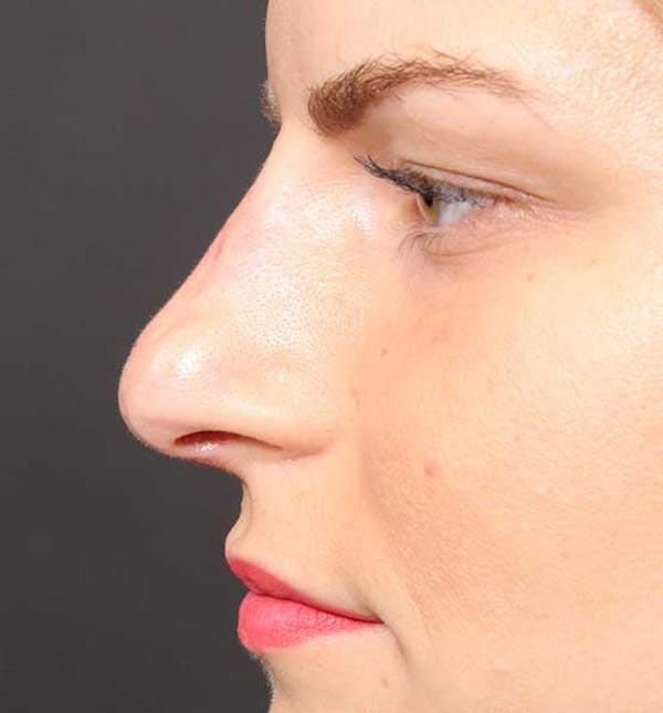 Non-Surgical Rhinoplasty Gallery - Patient 14089581 - Image 6