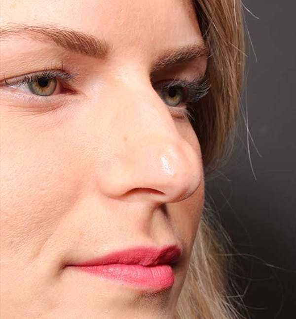Non-Surgical Rhinoplasty Gallery - Patient 14089581 - Image 7