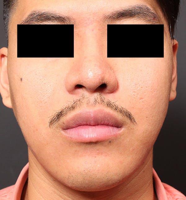 Genioplasty Gallery - Patient 14089584 - Image 3