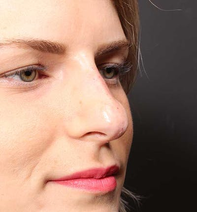 Non-Surgical Rhinoplasty Gallery - Patient 14089581 - Image 8