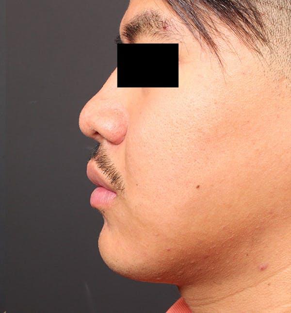 Genioplasty Gallery - Patient 14089584 - Image 5