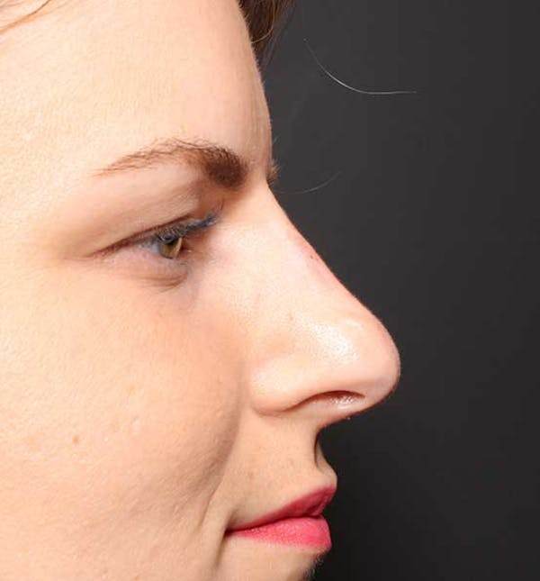 Non-Surgical Rhinoplasty Gallery - Patient 14089581 - Image 10