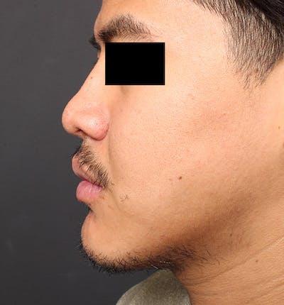 Genioplasty Gallery - Patient 14089584 - Image 6