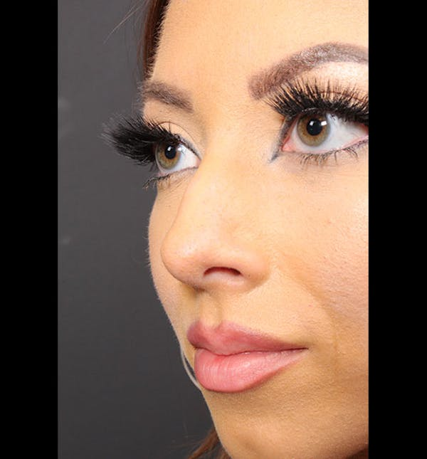 Non-Surgical Rhinoplasty Gallery - Patient 14089586 - Image 1